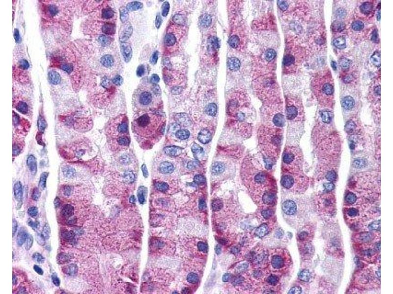 Immunohistochemistry (Paraffin-embedded Sections) (IHC (p)) image for anti-Tachykinin Receptor 1 (TACR1) (2nd Extracellular Domain) antibody (ABIN4339804)