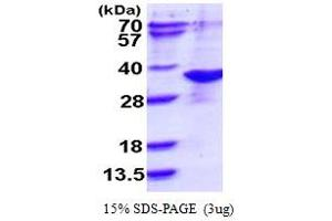 Image no. 1 for ARD1 Homolog, N-Acetyltransferase (ARD1A) (AA 1-235) protein (His tag) (ABIN667945)