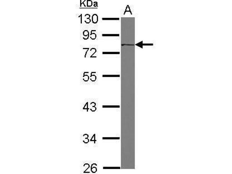Western Blotting (WB) image for anti-CD36 Molecule (thrombospondin Receptor) (CD36) (C-Term) antibody (ABIN2854820)