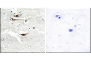 Image no. 1 for anti-Inositol 1,3,4,5,6-Pentakisphosphate 2-Kinase (IPPK) (AA 11-60) antibody (ABIN1534131)