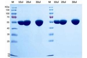 SDS-PAGE (SDS) image for Human Serum Albumin (HSA) protein (ABIN488498)