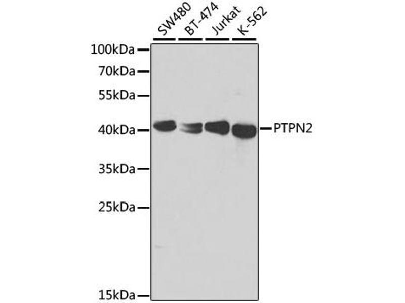 Image no. 3 for anti-Protein tyrosine Phosphatase, Non-Receptor Type 2 (PTPN2) antibody (ABIN6568912)