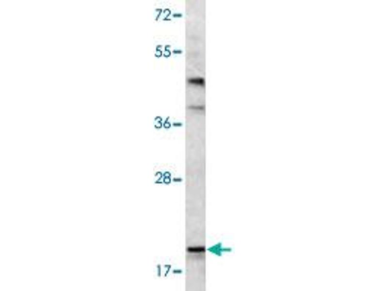Image no. 2 for anti-BCL2-Associated Agonist of Cell Death (BAD) antibody (ABIN543412)