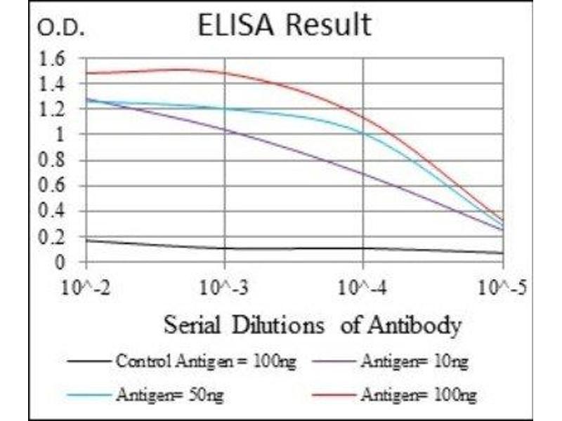 ELISA image for anti-Interleukin 2 Receptor, alpha (IL2RA) antibody (ABIN4291000)