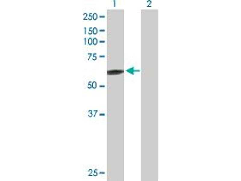 Image no. 1 for anti-ATP-Binding Cassette, Sub-Family C (CFTR/MRP), Member 11 (ABCC11) (AA 1-553) antibody (ABIN529875)