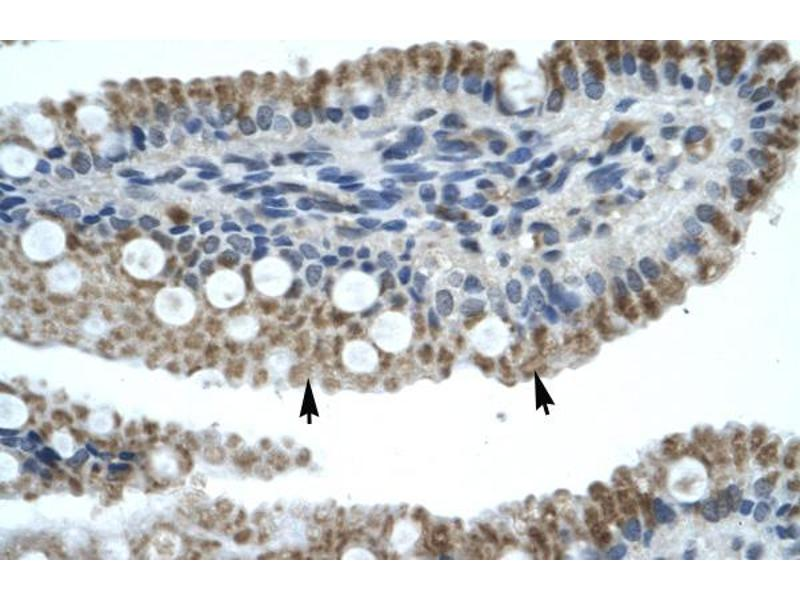 Immunohistochemistry (IHC) image for anti-Zinc Finger Protein 683 (ZNF683) (N-Term) antibody (ABIN183319)