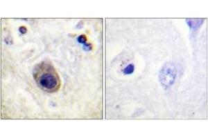 Immunohistochemistry (IHC) image for anti-GJA1 antibody (Gap Junction Protein, alpha 1, 43kDa) (pSer261) (ABIN1531561)