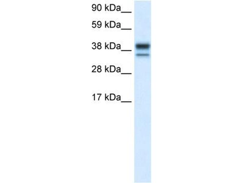 Western Blotting (WB) image for anti-Mitogen-Activated Protein Kinase 14 (MAPK14) (C-Term) antibody (ABIN2792183)