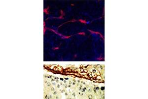 Immunohistochemistry (Paraffin-embedded Sections) (IHC (p)) image for anti-EPH Receptor A4 (EPHA4) (N-Term) antibody (ABIN359794)