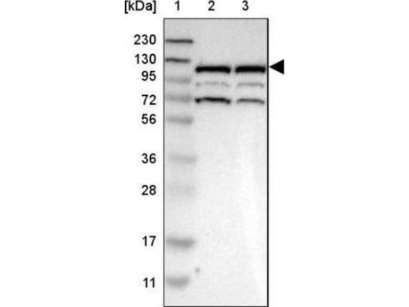 Western Blotting (WB) image for anti-Ras Protein-Specific Guanine Nucleotide-Releasing Factor 2 (RASGRF2) 抗体 (ABIN4349417)