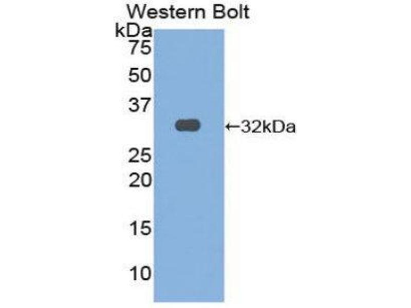 Western Blotting (WB) image for anti-Oncostatin M Receptor (OSMR) (AA 503-749) antibody (ABIN1860111)