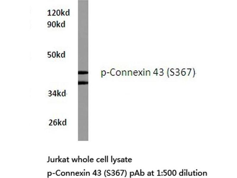 Western Blotting (WB) image for anti-GJA1 antibody (Gap Junction Protein, alpha 1, 43kDa) (pSer367) (ABIN498754)