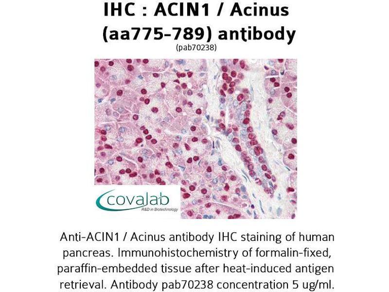 Image no. 1 for anti-Apoptotic Chromatin Condensation Inducer 1 (ACIN1) (AA 775-789) antibody (ABIN1731450)