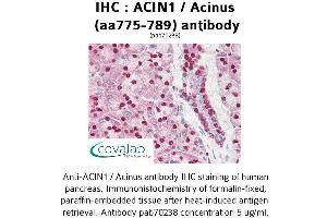 Image no. 1 for anti-Apoptotic Chromatin Condensation Inducer 1 (ACIN1) (AA 775-789) antibody (ABIN1731450)
