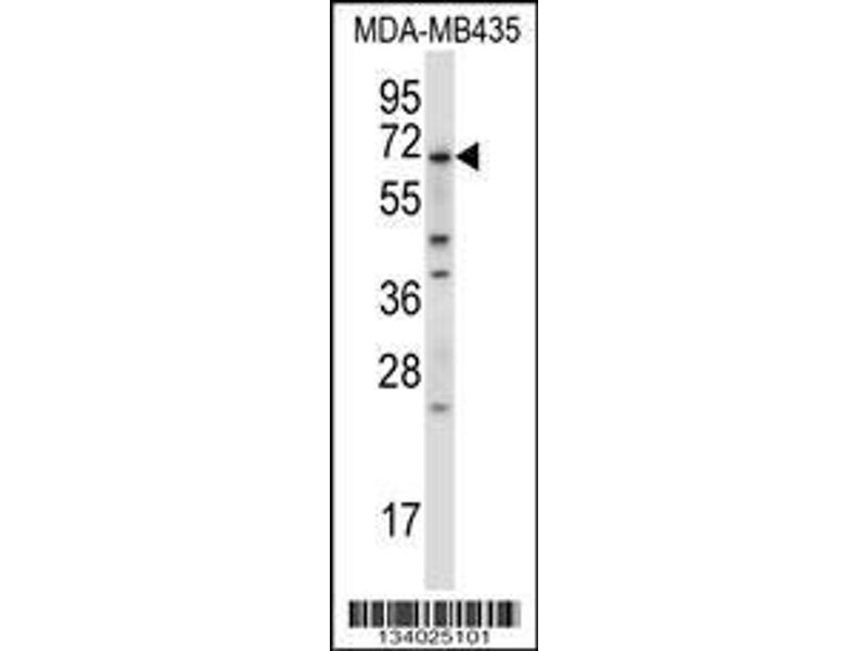 Western Blotting (WB) image for anti-BIRC3 Antikörper (Baculoviral IAP Repeat Containing 3) (AA 59-88) (ABIN657941)