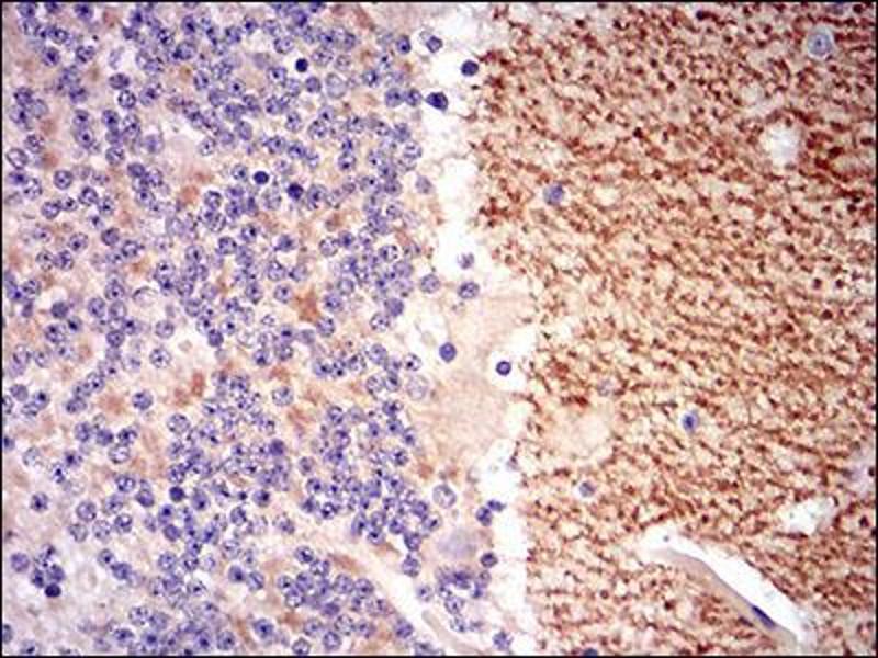 Image no. 1 for anti-gamma-aminobutyric Acid (GABA) B Receptor, 2 (GABBR2) (AA 319-483) antibody (ABIN1724938)