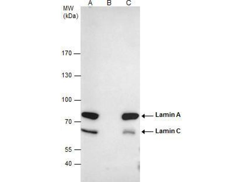 Immunoprecipitation (IP) image for anti-Lamin A/C (LMNA) (Center) antibody (ABIN2854943)