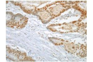 image for anti-MAD2 Mitotic Arrest Deficient-Like 1 (Yeast) (MAD2L1) antibody (ABIN108556)