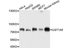 Image no. 1 for anti-UDP Glucuronosyltransferase 1 Family, Polypeptide A6 (UGT1A6) antibody (ABIN6566750)