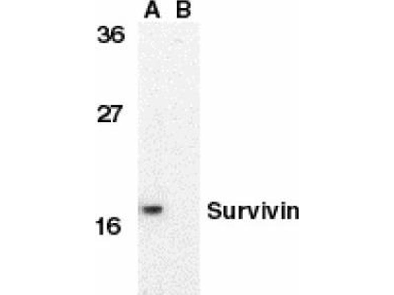 image for anti-BIRC5 antibody (Baculoviral IAP Repeat-Containing 5) (C-Term) (ABIN401046)