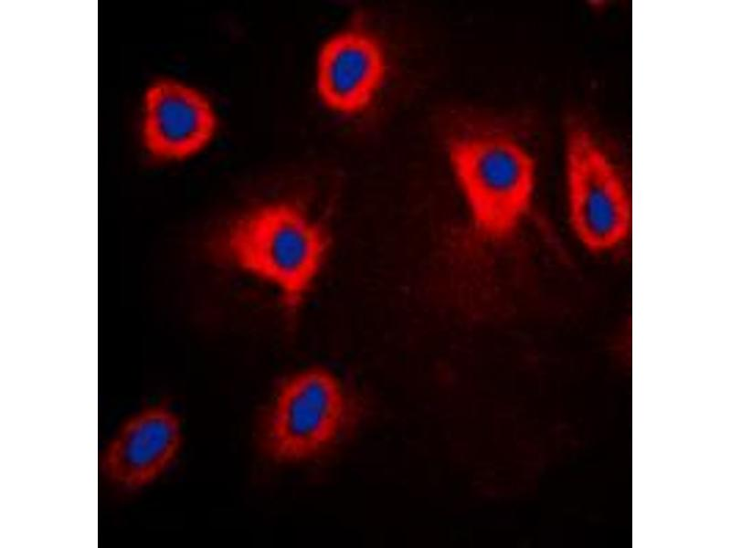 Immunofluorescence (IF) image for anti-Mitogen-Activated Protein Kinase Kinase Kinase 8 (MAP3K8) (pSer290) antibody (ABIN2707193)