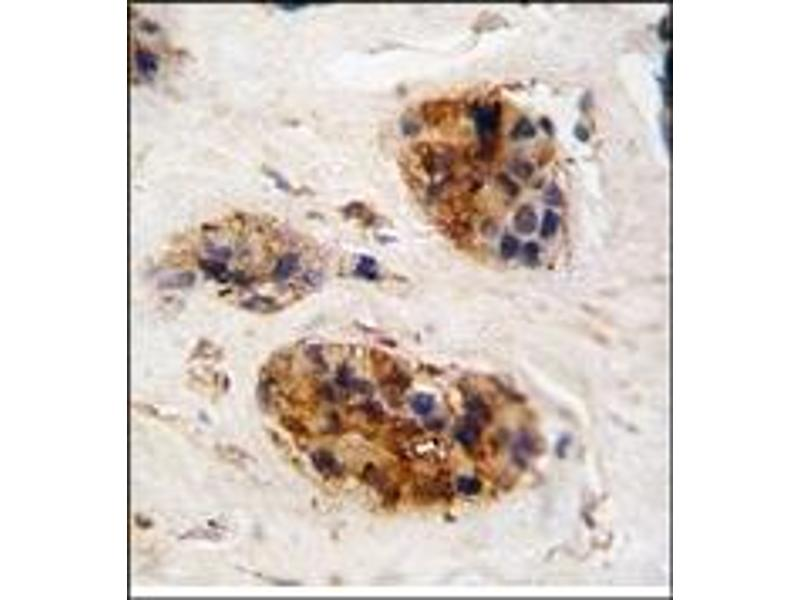 image for anti-Vimentin (VIM) (Middle Region) antibody (ABIN357888)