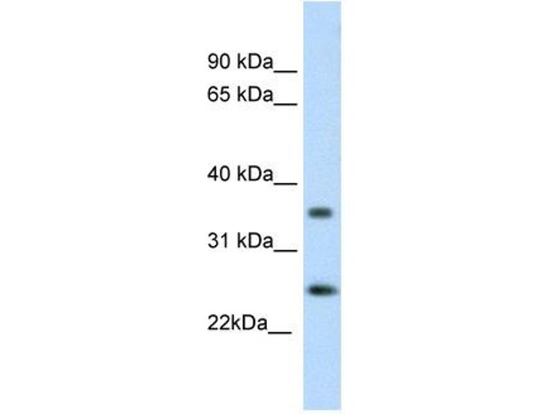 Western Blotting (WB) image for anti-Fas (TNFRSF6)-Associated Via Death Domain (FADD) (C-Term) antibody (ABIN2779314)