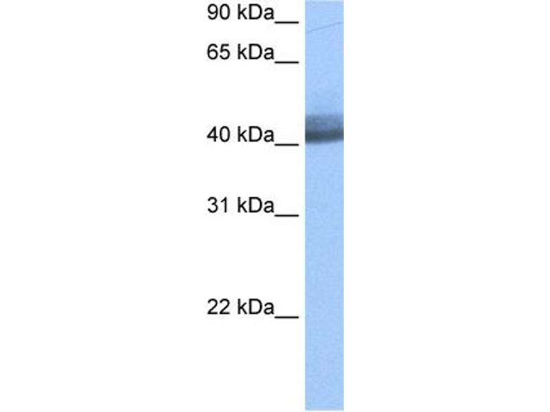 Western Blotting (WB) image for anti-RNA Binding Motif Protein 4 (RBM4) (Middle Region) antibody (ABIN2778817)