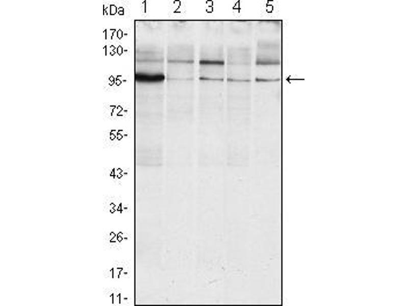 Western Blotting (WB) image for anti-Endoplasmic Reticulum To Nucleus Signaling 1 (ERN1) (AA 282-433) antibody (ABIN969116)