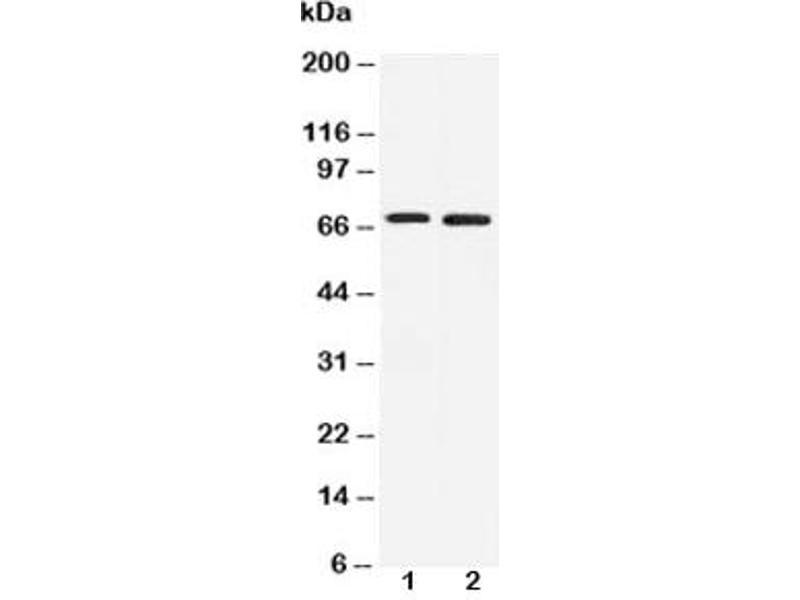 Western Blotting (WB) image for anti-Interleukin-1 Receptor-Associated Kinase 3 (IRAK3) antibody (ABIN3031494)