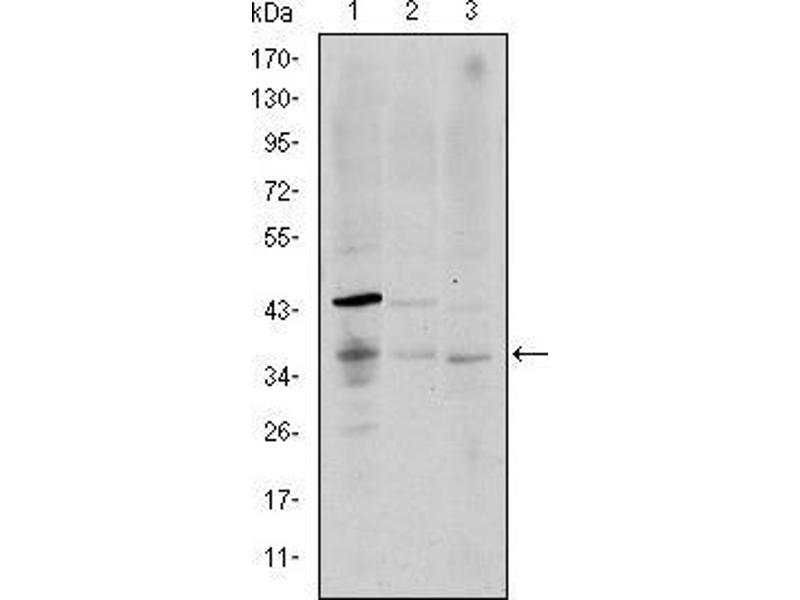 Western Blotting (WB) image for anti-CD1a Molecule (CD1A) antibody (ABIN969016)