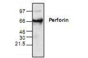 Western Blotting (WB) image for anti-Perforin 1 antibody (Perforin 1 (Pore Forming Protein)) (ABIN223034)