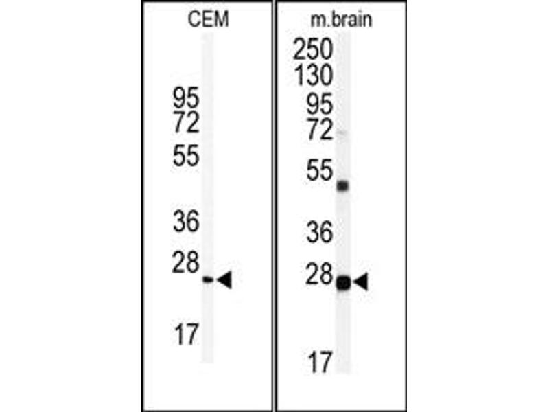 image for anti-Ubiquitin Carboxyl-terminal Esterase L1 (Ubiquitin Thiolesterase) (UCHL1) (N-Term) antibody (ABIN357509)