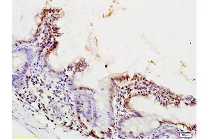Image no. 2 for anti-Peroxisome Proliferator-Activated Receptor alpha (PPARA) (AA 320-370) antibody (ABIN701620)