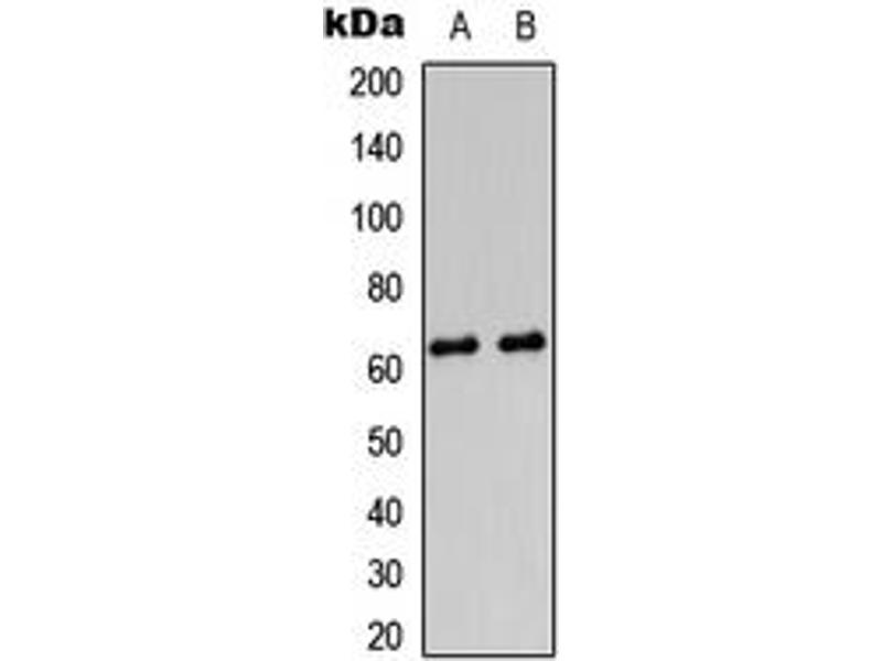 Western Blotting (WB) image for anti-Protein Kinase, AMP-Activated, gamma 2 Non-Catalytic Subunit (PRKAG2) (N-Term) antibody (ABIN2707330)