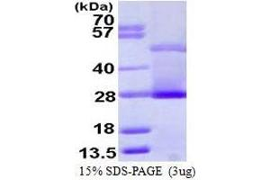 SDS-PAGE (SDS) image for Crp (AA 19-224) peptide (ABIN935115)