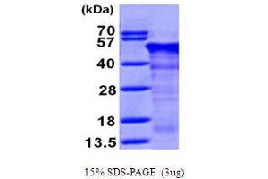 Image no. 1 for Reticulocalbin 1, EF-Hand Calcium Binding Domain (RCN1) (AA 30-331) protein (His tag) (ABIN667181)