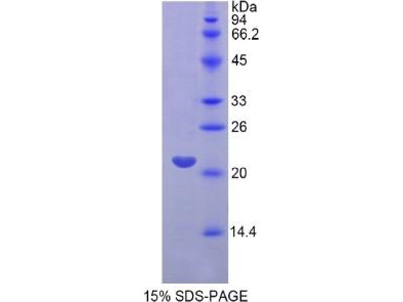 Fibroblast Growth Factor 13 (FGF13) ELISA Kit (2)