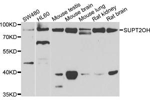 Image no. 4 for anti-Suppressor of Ty 20 Homolog (S. Cerevisiae) (SUPT20H) antibody (ABIN6571103)