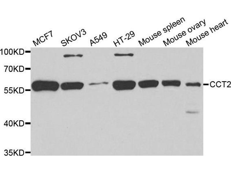 Image no. 1 for anti-Chaperonin Containing TCP1, Subunit 2 (Beta) (CCT2) antibody (ABIN2561652)
