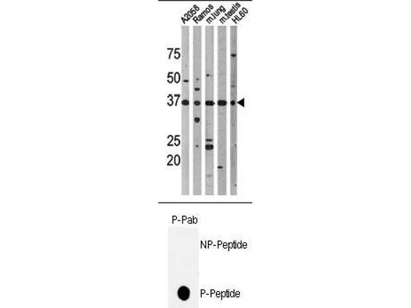 image for anti-p53 antibody (Tumor Protein P53) (pThr18) (ABIN358195)