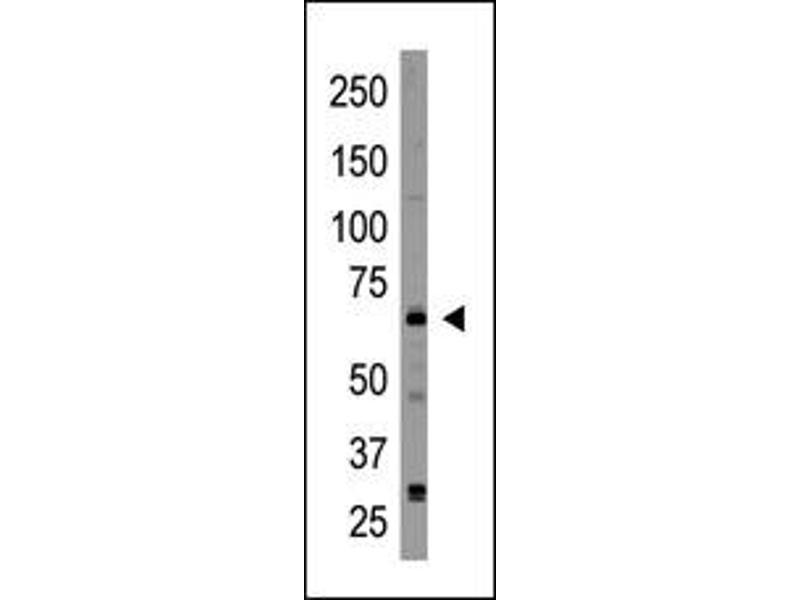 image for anti-Cryptochrome 2 (Photolyase-Like) (CRY2) (C-Term) antibody (ABIN358614)