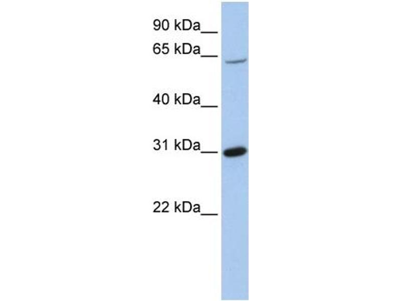 Western Blotting (WB) image for anti-FRK antibody (Fyn-Related Kinase) (Middle Region) (ABIN503541)