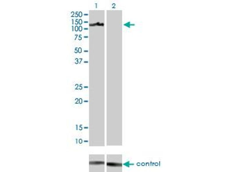 Western Blotting (WB) image for anti-AXL Receptor tyrosine Kinase (AXL) (AA 30-140) antibody (ABIN560017)
