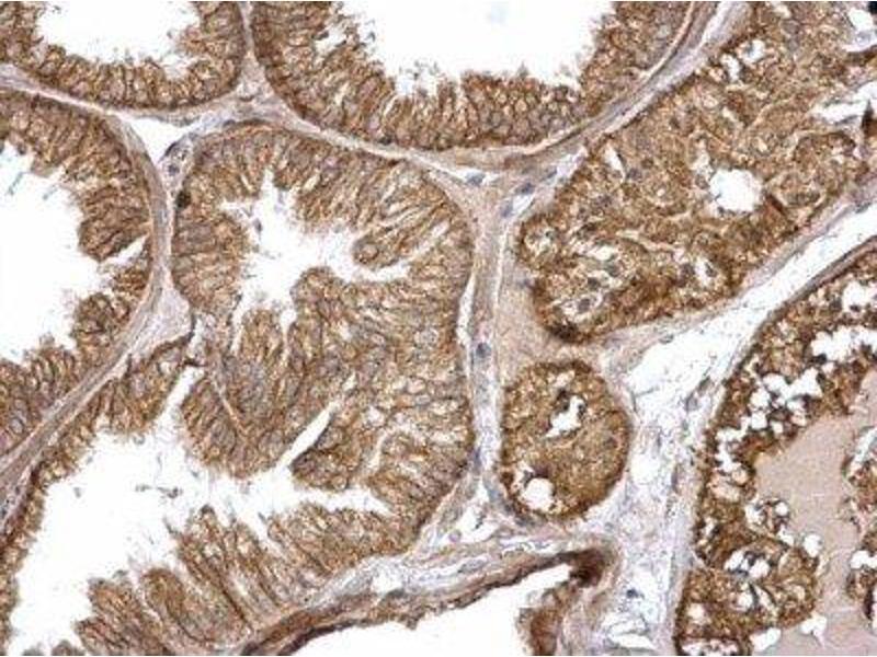 Immunohistochemistry (Paraffin-embedded Sections) (IHC (p)) image for anti-V-Ha-Ras Harvey Rat Sarcoma Viral Oncogene Homolog (HRAS) (C-Term) antibody (ABIN4319843)