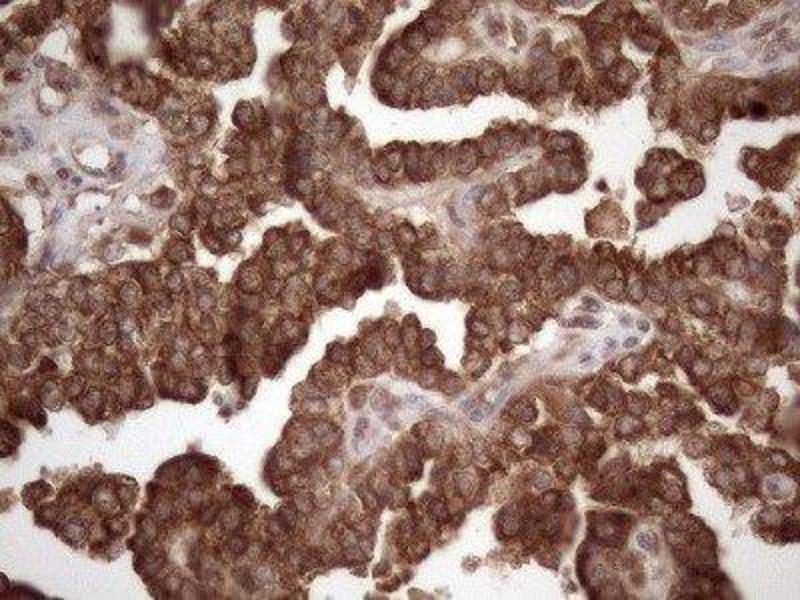 Immunohistochemistry (IHC) image for anti-Colony Stimulating Factor 2 Receptor, Beta, Low-Affinity (Granulocyte-Macrophage) (CSF2RB) antibody (ABIN4299730)