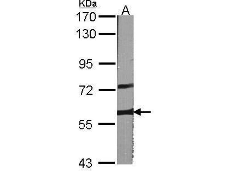 Western Blotting (WB) image for anti-V-Raf Murine Sarcoma 3611 Viral Oncogene Homolog (ARAF) (C-Term) antibody (ABIN2855039)