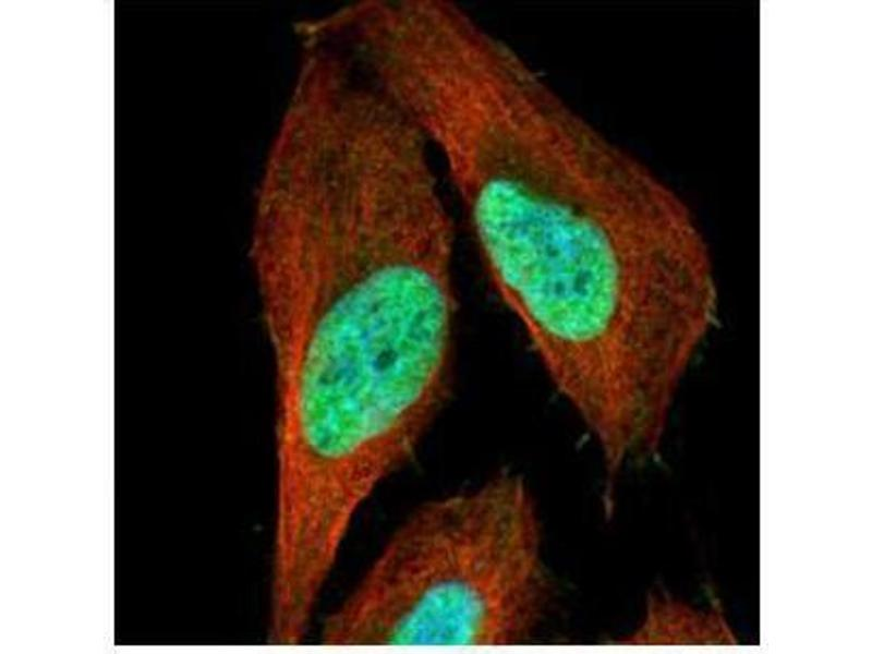 Immunofluorescence (IF) image for anti-Tumor Protein P53 (TP53) (Center) antibody (ABIN2855525)