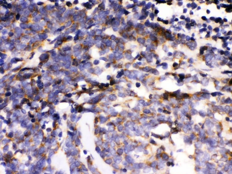 Immunohistochemistry (IHC) image for anti-MAPK6 antibody (Mitogen-Activated Protein Kinase 6) (AA 520-721) (ABIN3043611)