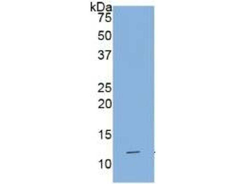 Interleukin 1 Receptor, Type I (IL1R1) ELISA Kit (2)